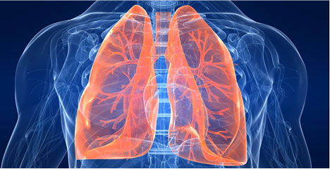 lungs, pulmonary nodules, pulmonary nodule, cancer, x-ray