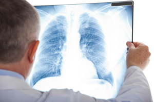when to see a pulmonary specialist