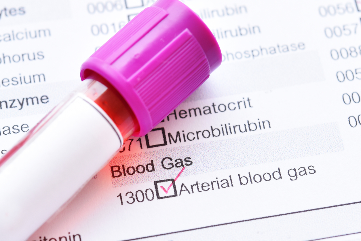 abg study, Arterial Blood Gas Study, How Does an Arterial Blood Gas Study Work